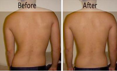 Preventing- Scoliosis